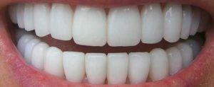 dentes e ossos