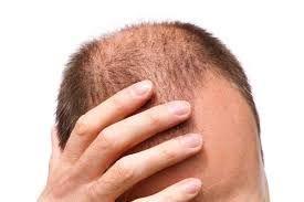 Top 7 vantagens de lubrificação o cabelo regularmente
